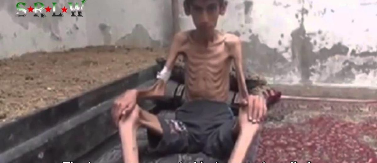 Syria starvation